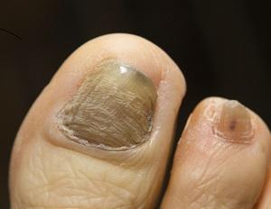Nails and Nail Conditions