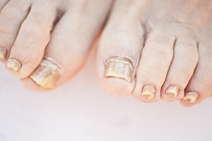 Some Facts on Toenail Infections