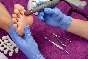 Why Your Feet Need a Chiropodist