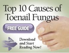 Top 10 causes of Toenail Fungus Free Guide - Beauchamp Foot Care ...