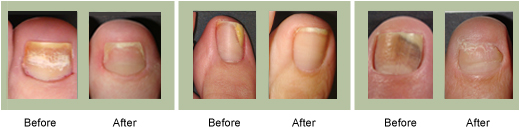 Laser Treatment Results - Beauchamp Foot Care - Beauchamp Foot Care