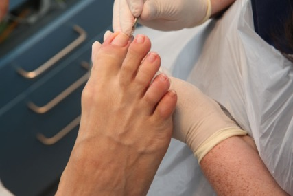 What Does a Chiropodist Do?