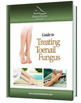 guide-to-treating-toenail-fungus-featured-image-3