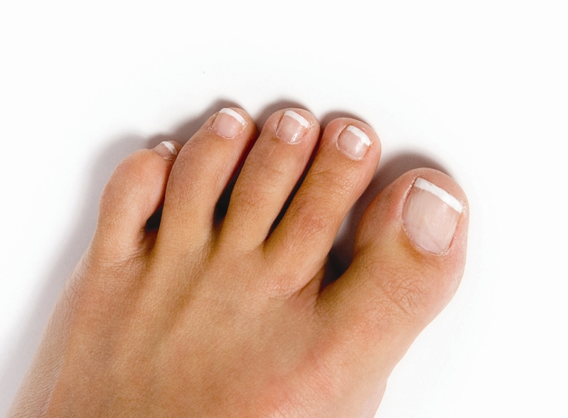 symptoms-of-toenail-fungus-featured-image