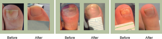 laser treatment results beauchamp foot care beauchamp foot care