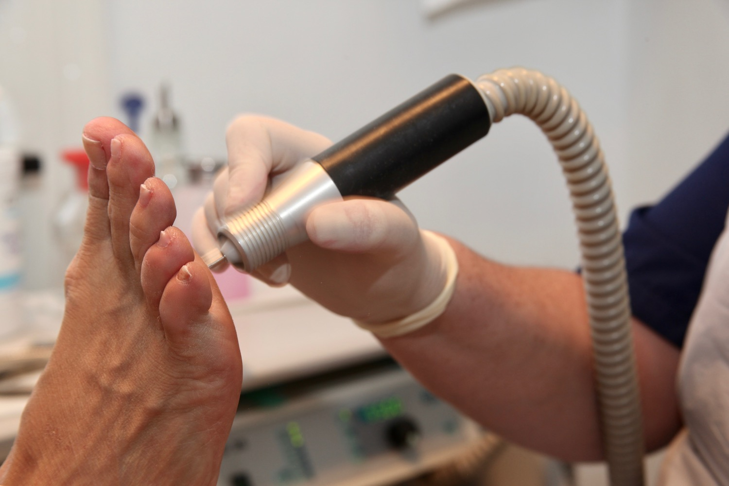 Choosing The Right Podiatrist For You